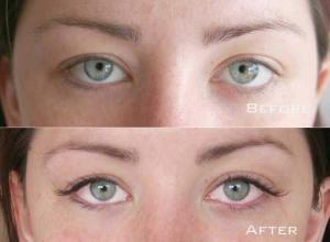 Before-After-Eyelash-Extensions-10