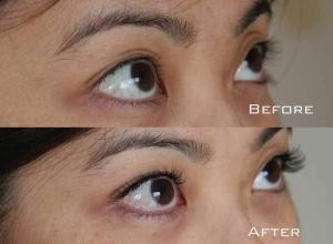 Before-After-Eyelash-Extensions-11