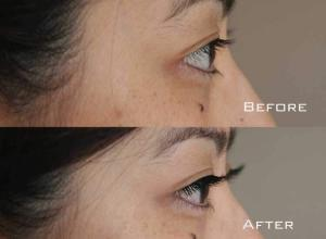 Before-After-Eyelash-Extensions-7